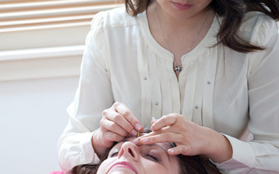 Cosmetic Acupuncture for Wrinkles