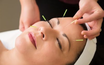 Everything you need to know about Cosmetic Acupuncture