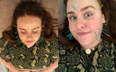 TRIED AND TESTED: I had cosmetic acupuncture, the ancient 'cure all' beauty treatment.
