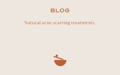 3 natural treatments for acne scarring